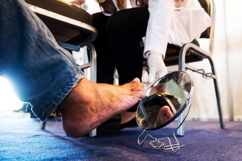 Le pied diabétique: Tableaux Cliniques