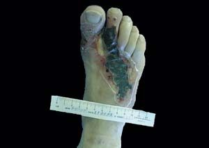 Fasciite nécrosante du dos du pied