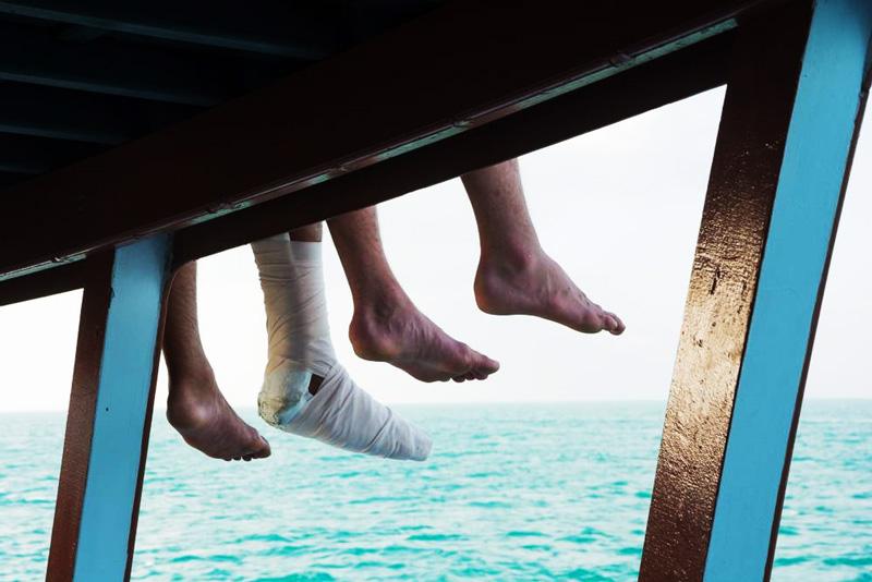 Fracture de fatigue du pied