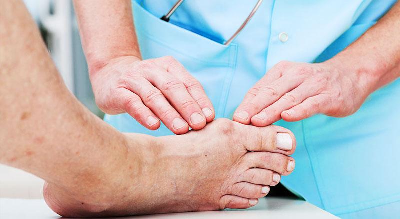 Orthèses d'orteils